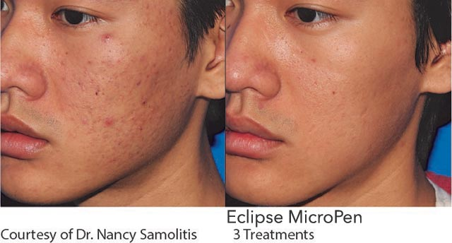 Micro Needling Acne Scars