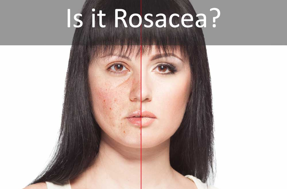Is it Rosacea