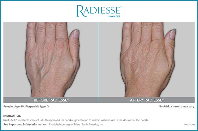Radiesse hands before and after
