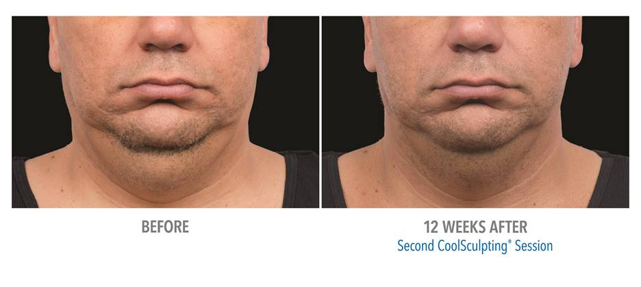 Coolsculpting Mini Freeze Your Double Chin Irvine