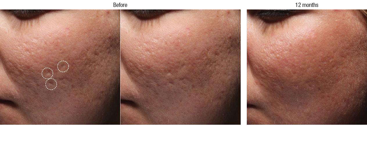 Acne Scar Filler Before And After Photos Irvine