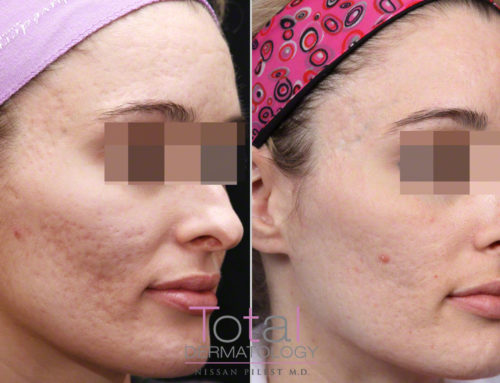 When Should I Treat My Acne Scars?