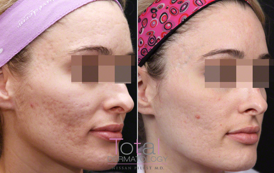 Fraxel acne scar treatment before after photo Orange County