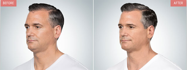 Kybella for Man Age 47