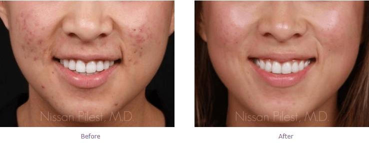 acne-scarring-beforeafter-gallery