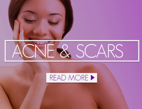 Best Treatments for Acne Scars